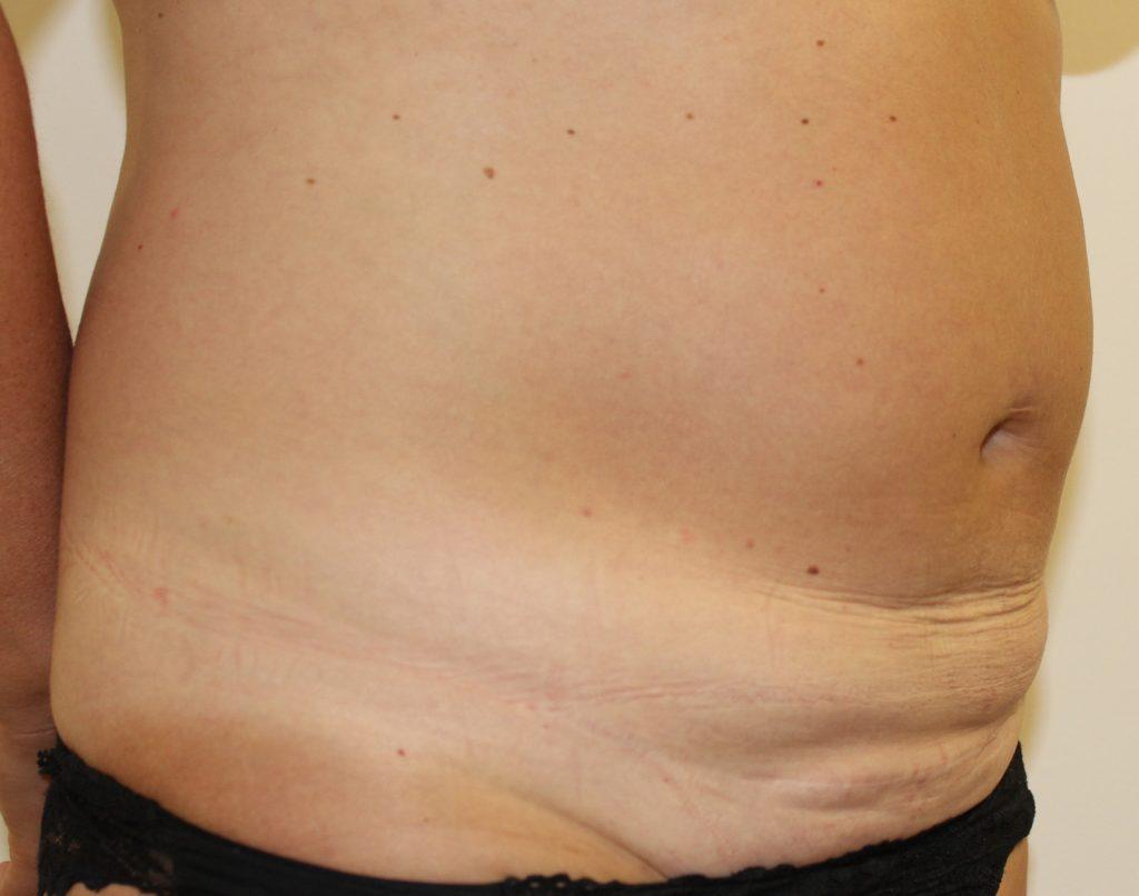 Mini Tummy Tuck Surgery   Mini Abdominoplasty   UK Aesthetic