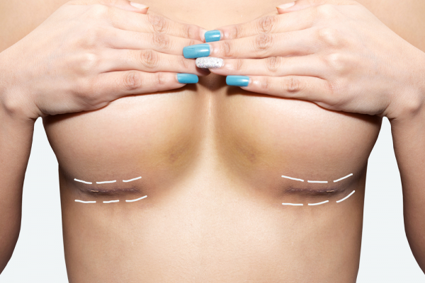 woman covering breasts which have surgical lines underneath