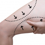 leg marked with lines for thigh lift surgery