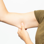image showing excess arm skin