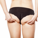 woman holding buttocks